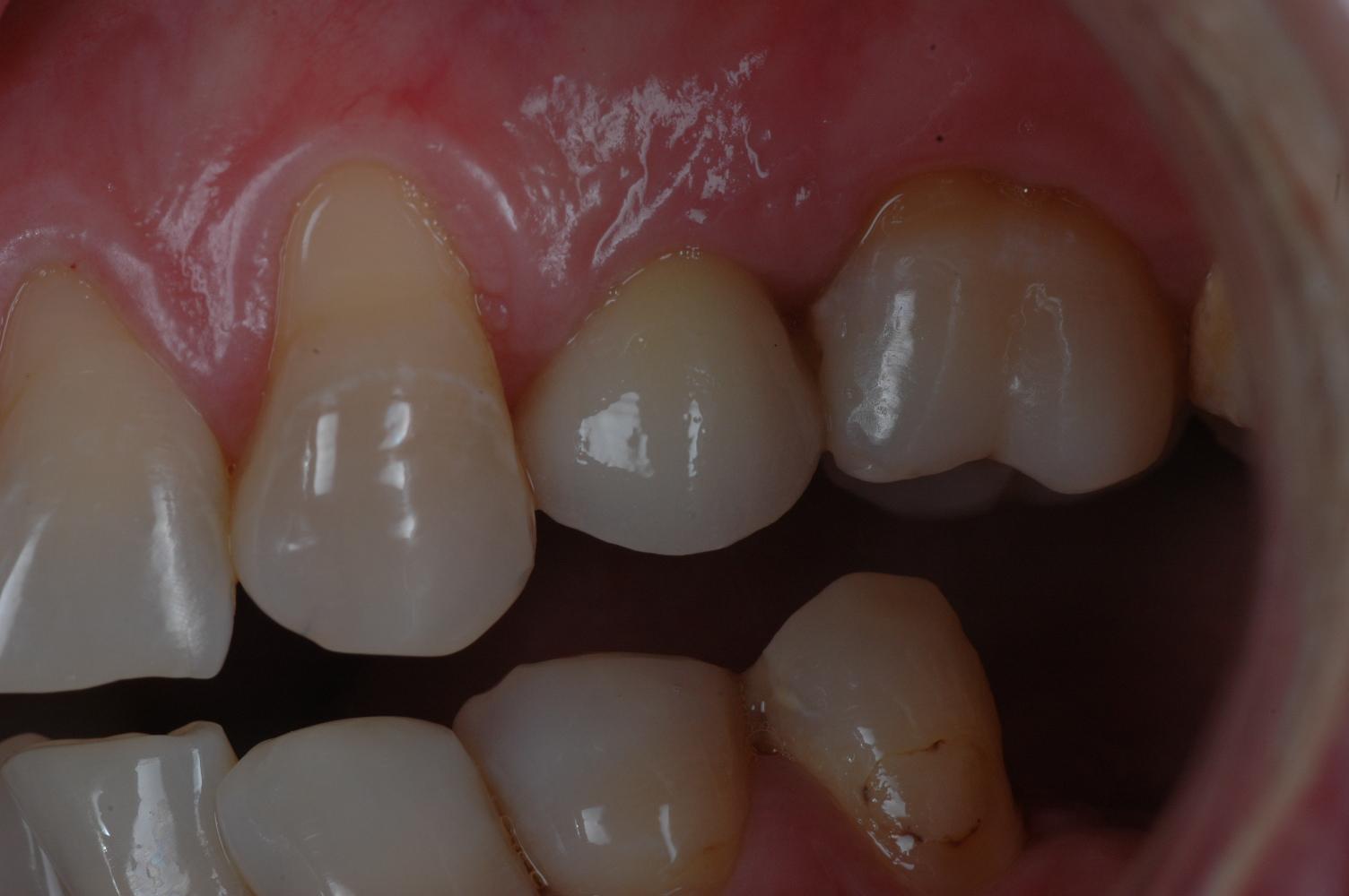 Prothèse en bouche